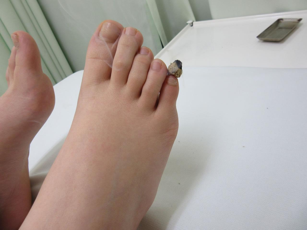 知熱灸 右足小指施術写真